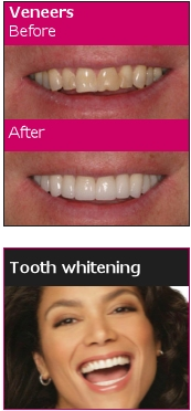 Tooth Whotening by One Complete Dental