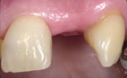 Tooth Implants - Hartforde Dental Centre