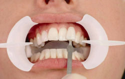 Tooth Whitening - Hartforde Dental Centre